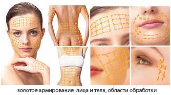 Подтяжка золотыми нитями тела и лица омолаживает и повышает тонус кожи