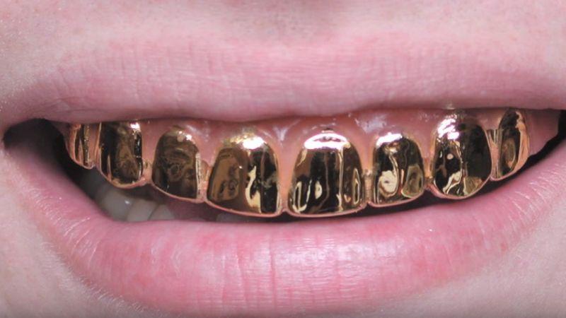 Золотые зубы у девушки